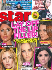 Lay of the lip fillers